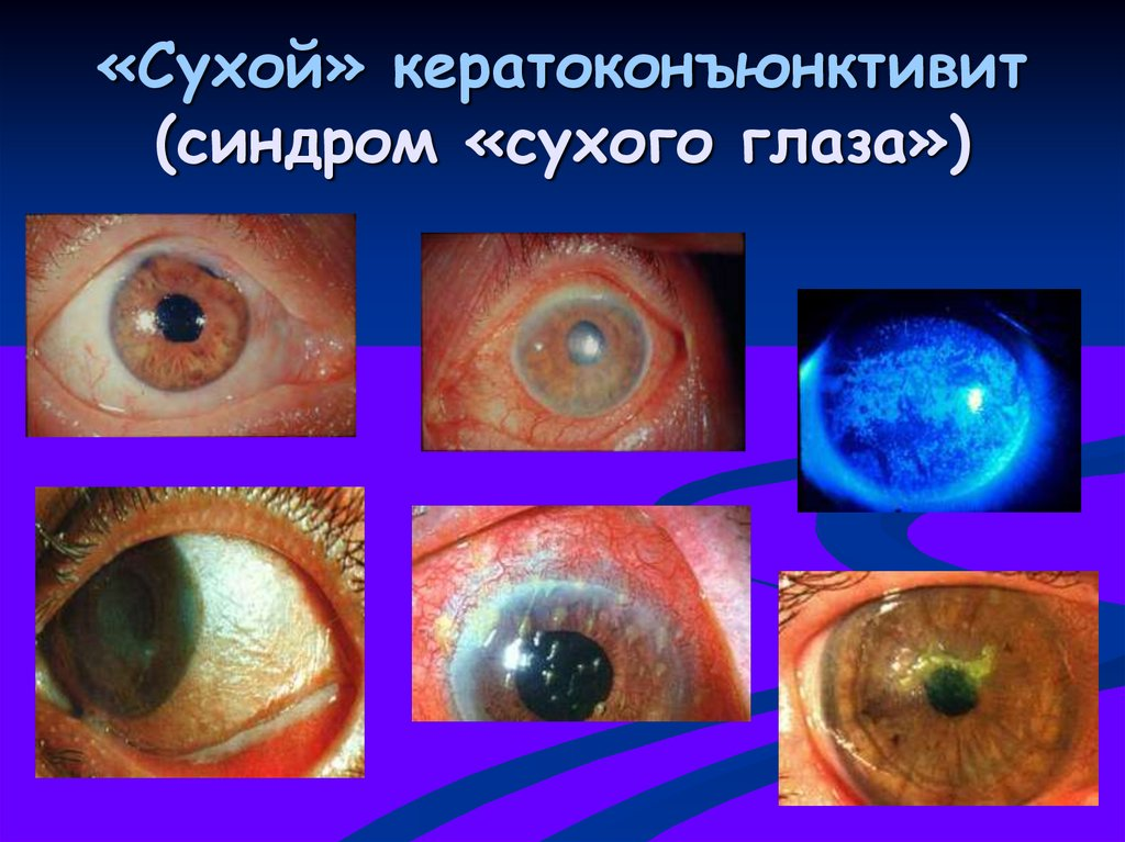 Синдром сухого глаза: симптомы и лечение, капли для глаз, причины заболевания, народными средствами, у ребенка, список