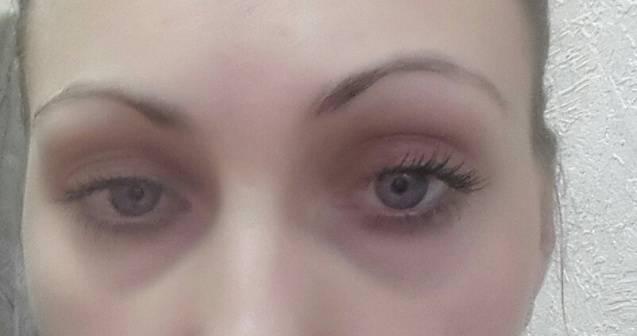 Синяки у переносицы в уголках глаз причины - от заболеваний