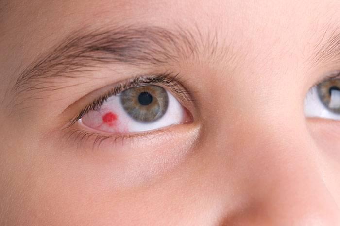 Гной в глазах у ребенка: причины, почему появляется и как лечить