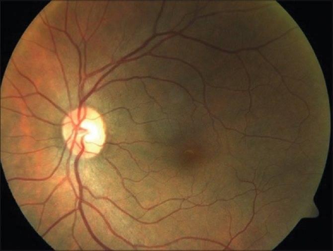 Ангиопатия сетчатки - что это значит, какой врач ставит диагноз, причины и лечение патологии стенок сосудов обоих глаз с фото
