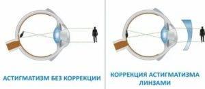 Альтернатива привычным очкам: плюсы и минусы контактных линз для дальнозоркости