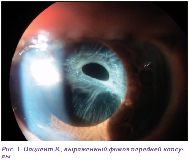 Первичный задний капсулорексис при факоэмульсификации катаракты с учетом состояния капсульного мешка хрусталика (стр. 2 )