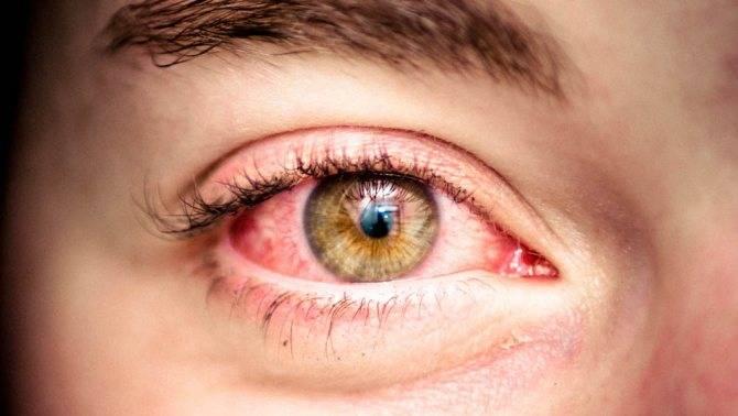 Красные глаза после сна   причины и лечение, препараты