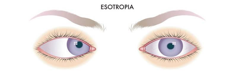 Лечение косоглазия у взрослых:  причины и симптоматика, методы лечения, гимнастика, аппаратное лечение — глаза эксперт