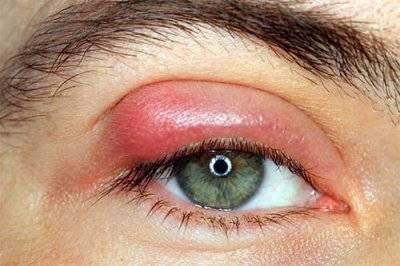 Что делать если ячмень сильно чешется. почему ячмень на глазу чешется — все о проблемах с глазами - портал медика