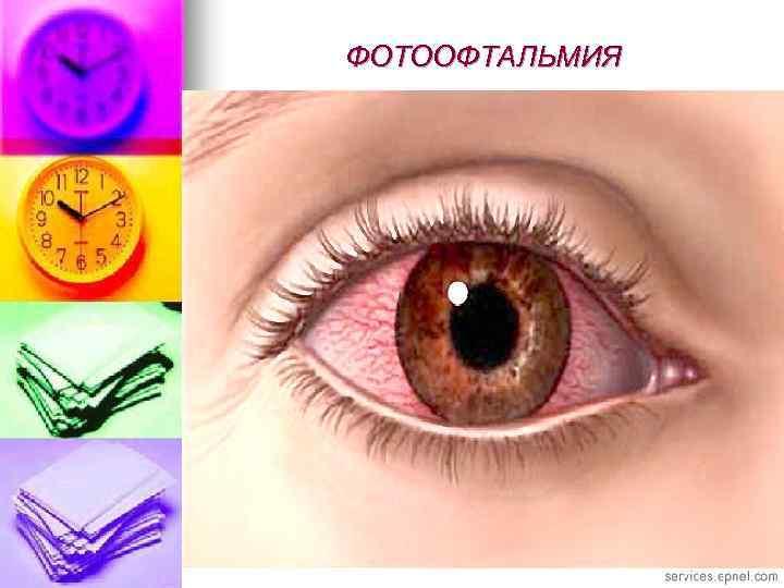 Экзофтальм: что это такое, причины, лечение выпученных глаз, симптомы, диагностика, виды, фото