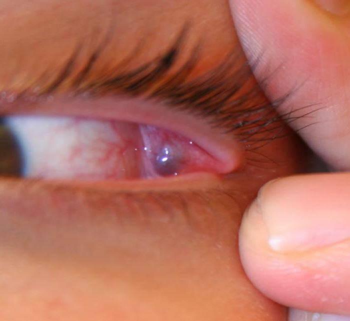 Как вылечить народными средствами ячмень на глазу | портал о народной медицине