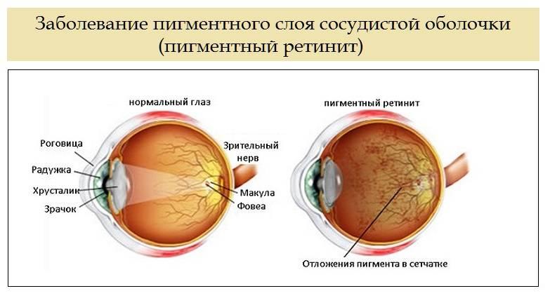 Пигментное пятно на сетчатке глаза — что это?