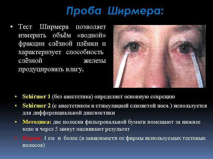 """Тест ширмера для определения синдрома """"сухого глаза"""", результаты"""