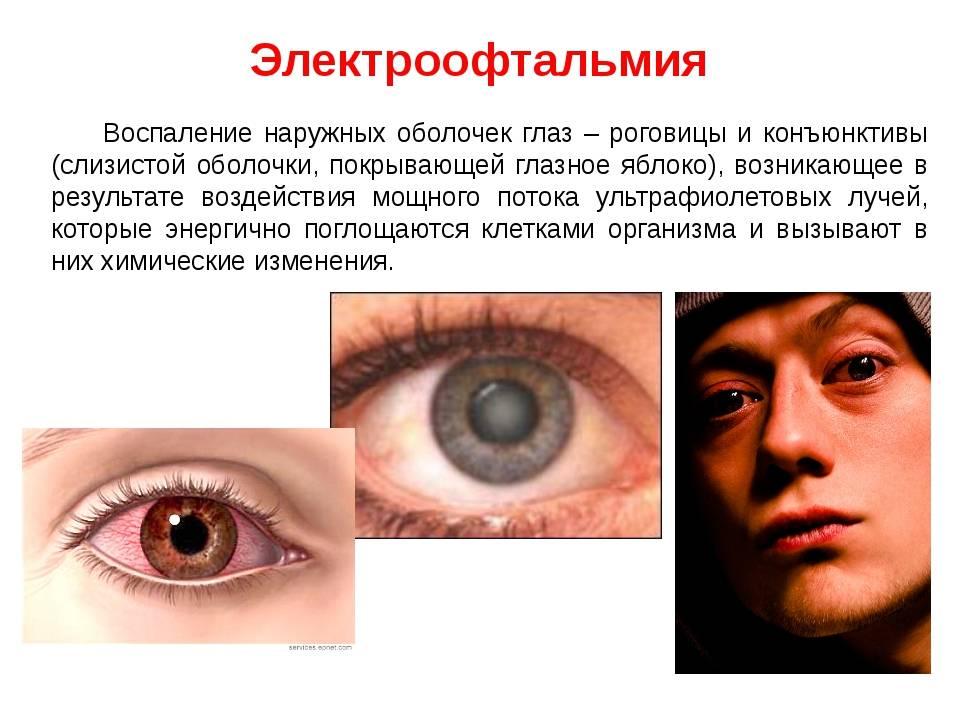 Симпатическая офтальмия: причины, симптомы и лечение