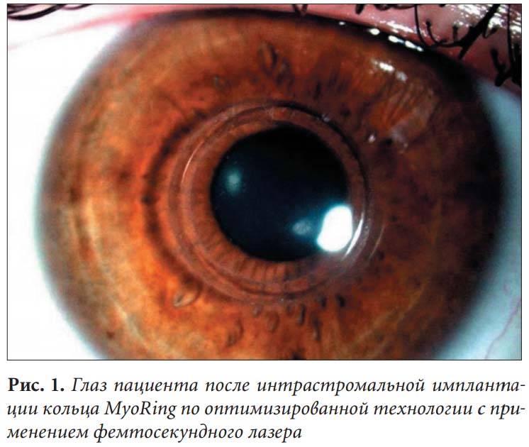 Интрастромальная имплантация кольца myoring   мнтк «микрохирургия глаза» им. акад. с.н. федорова