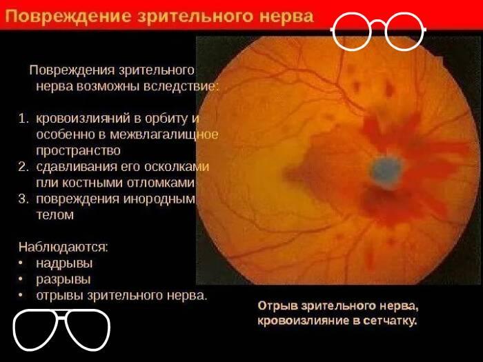 Отеки глаз
