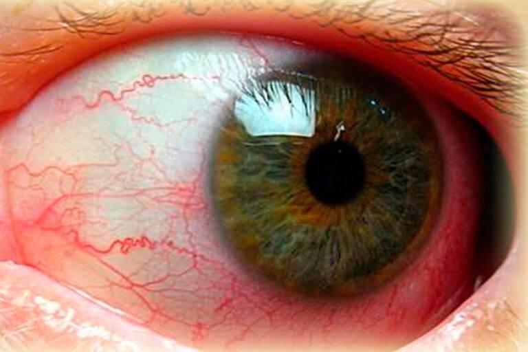 Склерит (воспаление склеры глаза): причины, симптомы, лечение (капли, народные средства и другое) и прочие аспекты