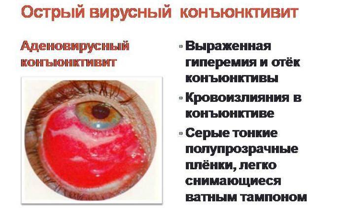 Кератоконъюнктивит: что это, причины, симптомы, лечение
