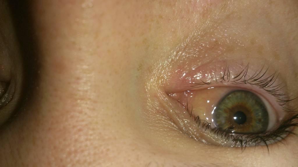 Почему образуется пленка на глазах у человека: лечение и профилактика