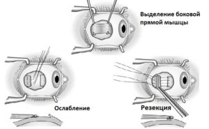 Косоглазие | мнтк «микрохирургия глаза» им. акад. с.н. федорова