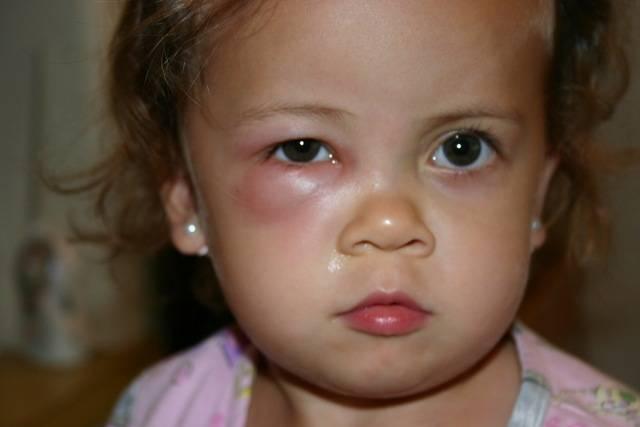Что делать и как лечить грудного ребенка если у него появились мешки под глазами?