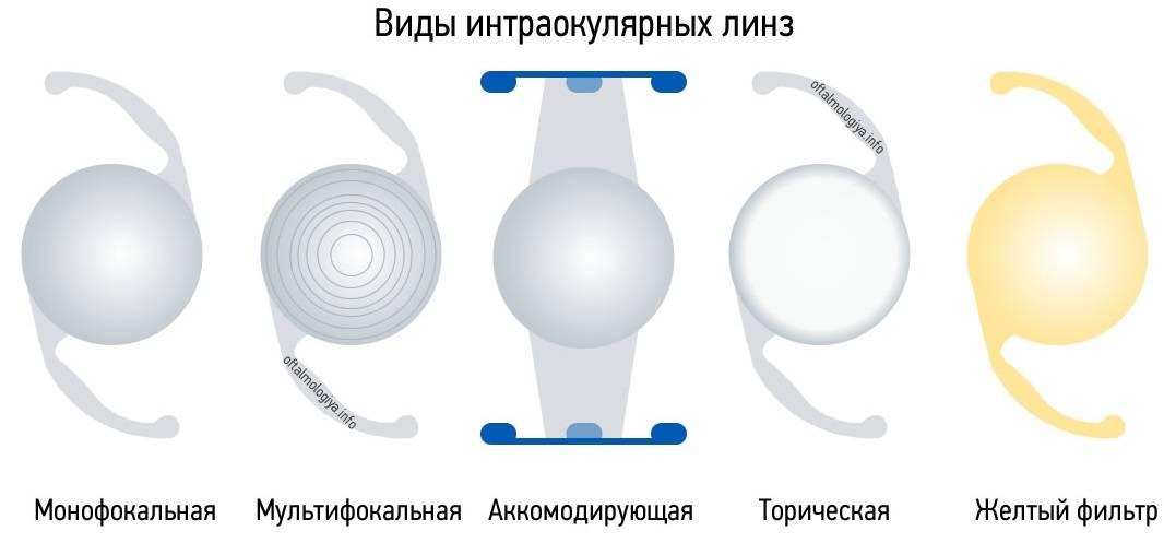 Имплантация иол (интраокулярные линзы) – искусственный хрусталик глаза – клиника новый взгляд в москве