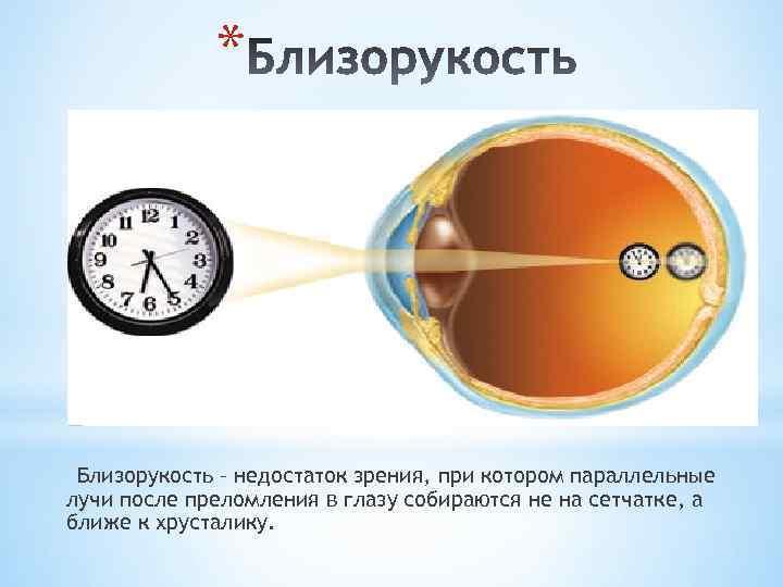 Близорукость: как восстановить зрение в домашних условиях без операции
