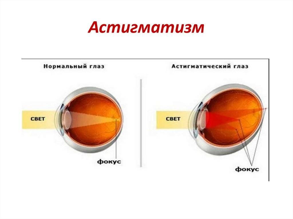 Врожденный и приобретенный астигматизм: причины и различия