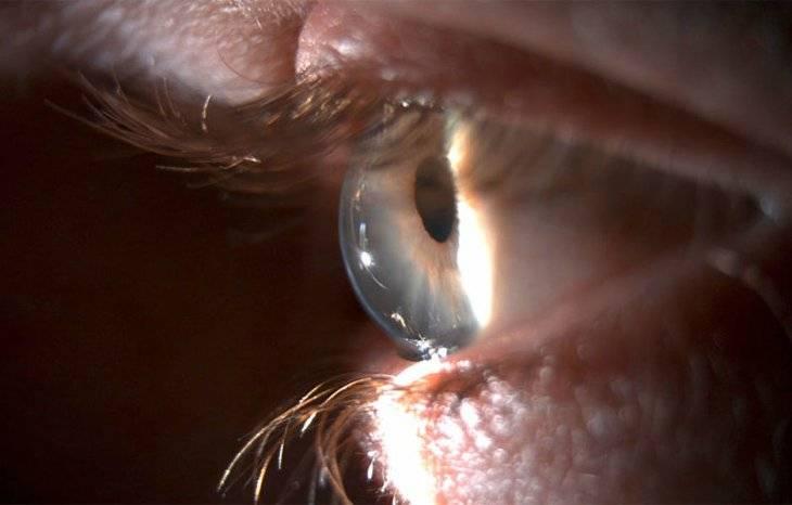 """Кератоконус: симптомы и лечение - """"здоровое око"""""""