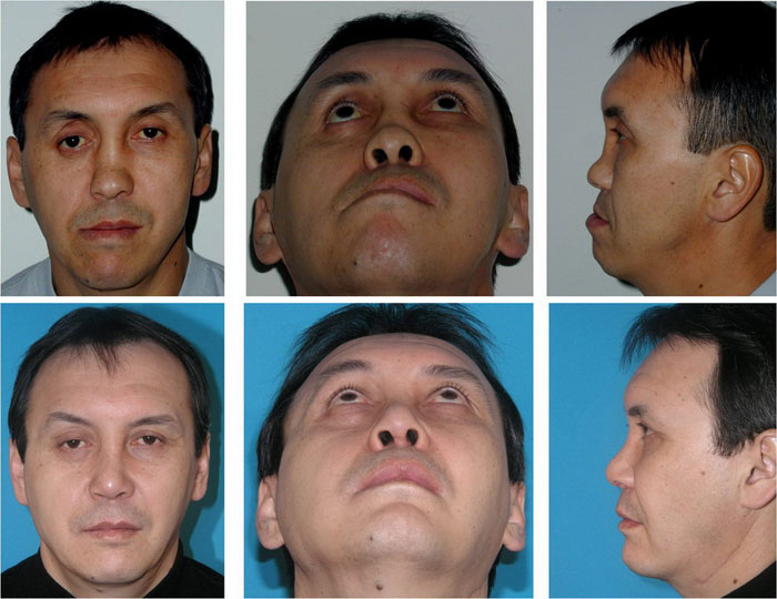 Причины симптома когда болят скулы на лице