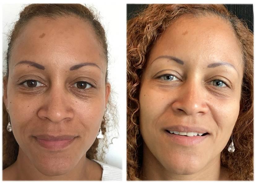Лазерная операция по изменению цвета глаз
