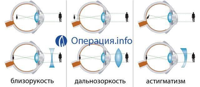 Астигматизм и близорукость в чем отличие, лечение и профилактика — глаза эксперт
