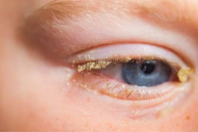 Какие основные признаки хламидийного конъюнктивита (хламидиоз глаз)