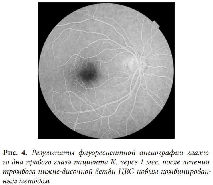 Флюоресцентная ангиография сетчатки глаза (фаг) – что это?