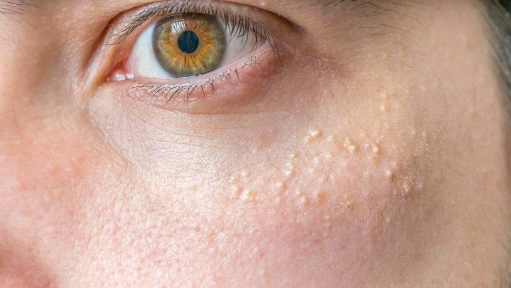 Причины и способы удаления милиумов на лице