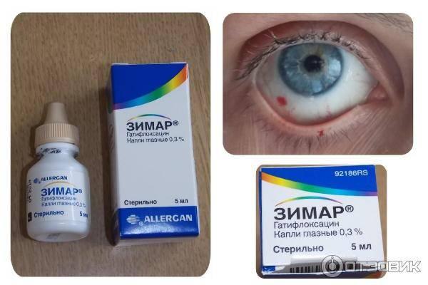 Какие капли капать при кровоизлиянии в глазу: список препаратов oculistic.ru какие капли капать при кровоизлиянии в глазу: список препаратов