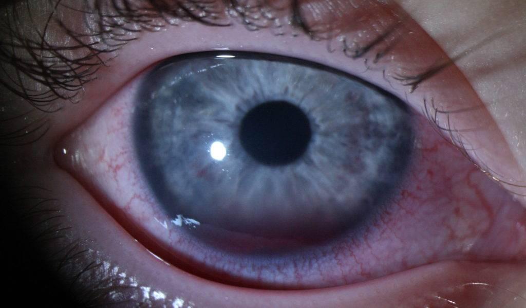 Ожог глаза: первая помощь и лечение роговицы каплями