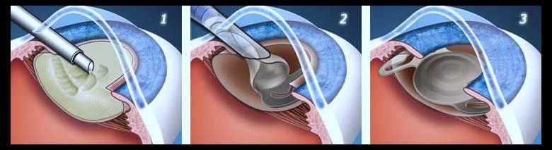 Имплантация стромальных колец