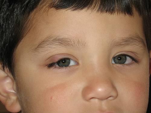 Ячмень на глазу у ребенка: полный список средств и способов лечения
