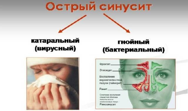 Насморк и слезятся глаза с температурой, чиханием, кашлем: причины, лечение   компетентно о здоровье на ilive