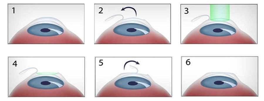 Как делают операцию на глаза: лазерная коррекция, ласик, фрк, рекомендации, послеоперационный период, близорукость