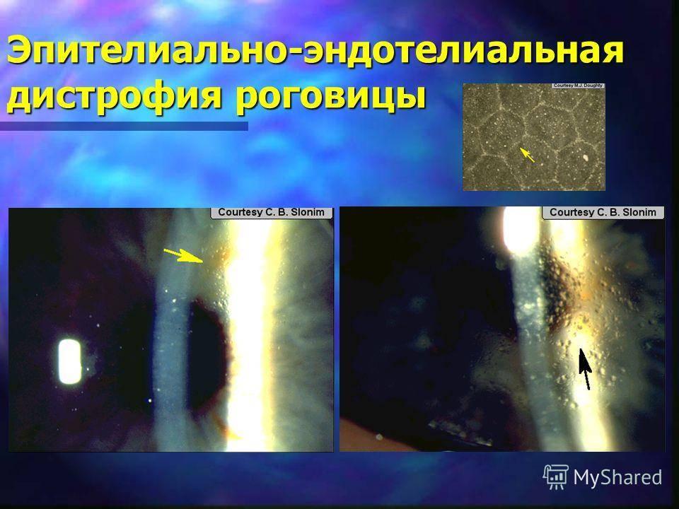 Эпителиально-эндотелиальная дистрофия роговицы
