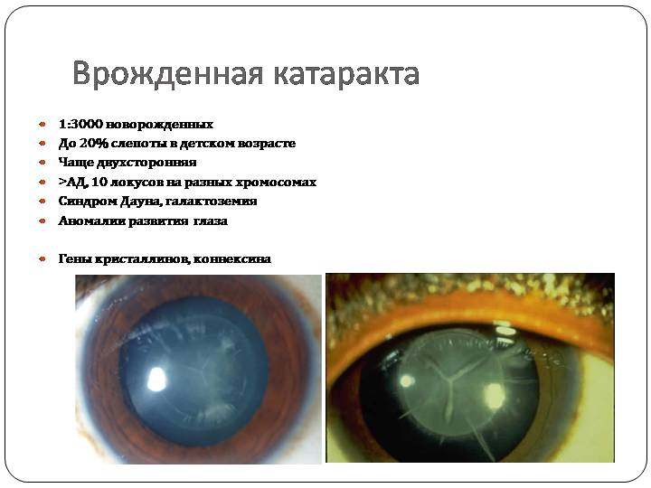 """Врожденная катаракта: причины, симптомы, лечение - """"здоровое око"""""""
