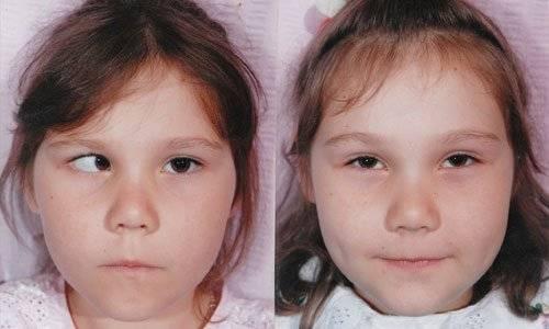 Операция по исправлению косоглазия: виды, сколько стоит, осложнения и реабилитация после операции - moscoweyes.ru