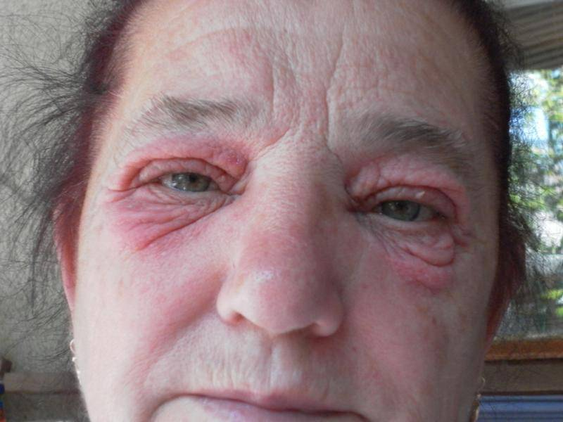 """Зуд век: причины,лечение, профилактика - """"здоровое око"""""""