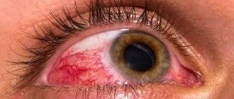 Грибковая инфекция глаз: виды поражений и препараты от грибка