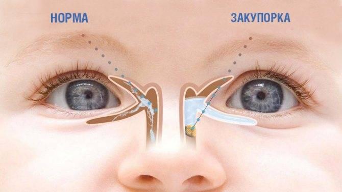 """Промывание слезного канала у новорожденного - """"здоровое око"""""""