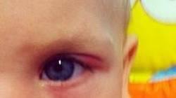 Халязион у ребенка: лечение верхнего и нижнего века, причины, симптомы, удаление, комаровский