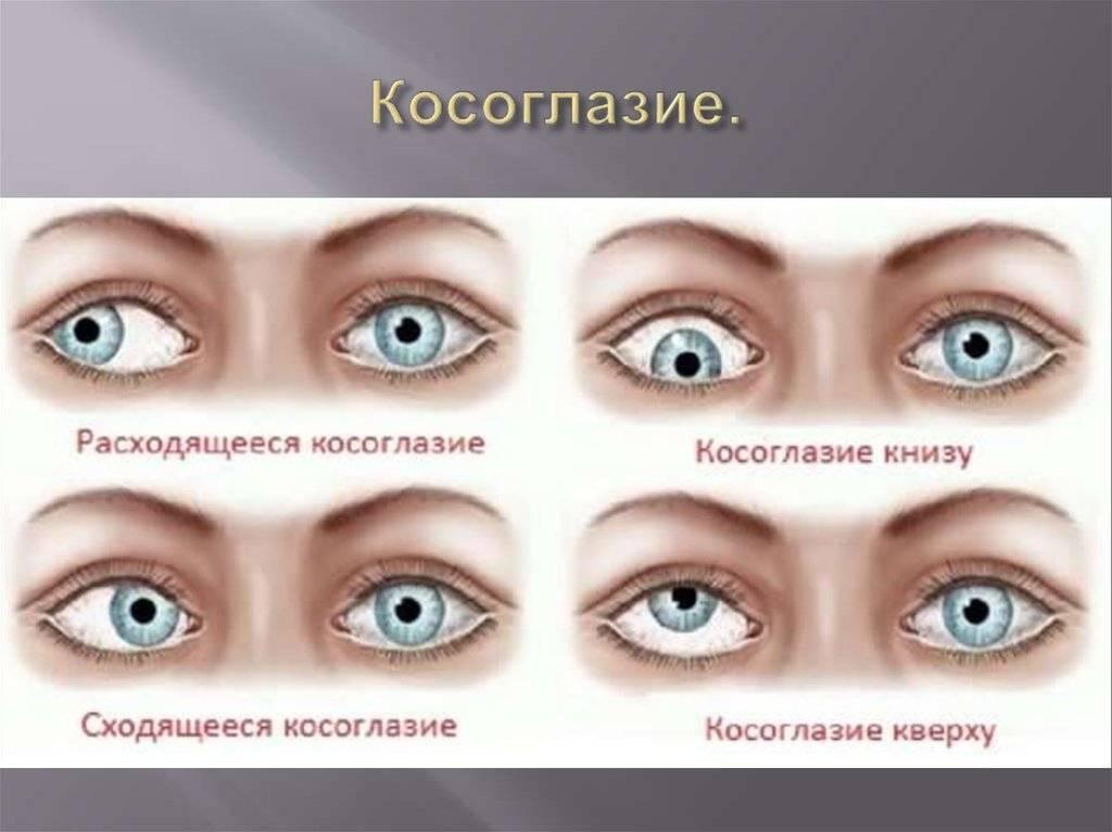 Косоглазие обоих глаз. как видят мир люди у которых косоглазие