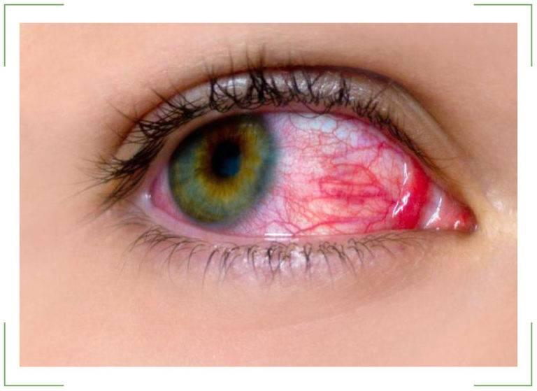 Ожог роговицы глаза - симптомы и лечение проблемы