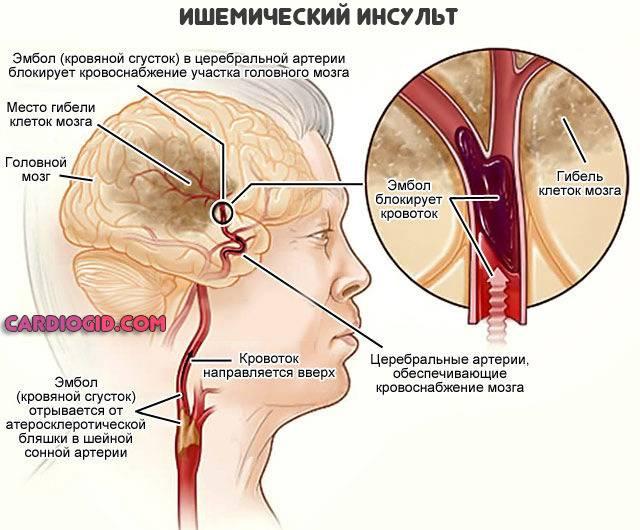 Лечение и восстановление после ишемического инсульта головного мозга
