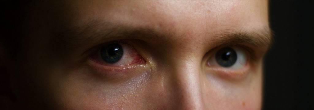 Красные глаза после сна причины и лечение утреннего покраснения