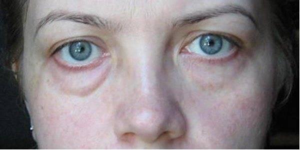 Опухло нижнее веко глаза — причины и что предпринять?