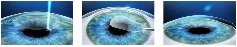 Где и у кого лучше делать лазерную коррекцию зрения relex smile (смайл)